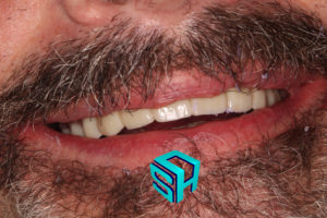 Dr. Ash Traveling periodontics, providing implant supported dentures