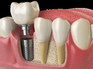 Dr. Ash dental implant